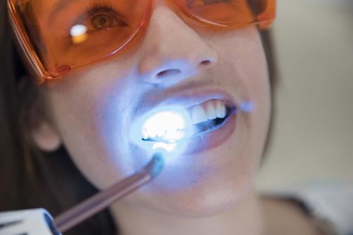 blanqueamiento_dental_img