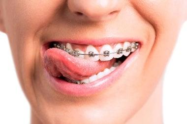 home_ortodoncia