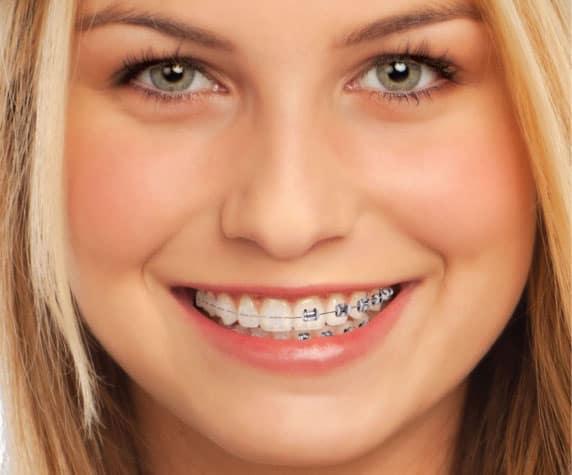 ortodoncia_img3