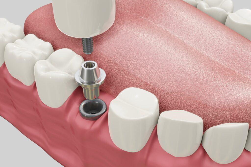 Dentista vicino a Caronno Pertusella